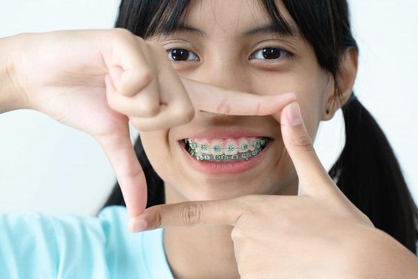 Diş Teli Tedavisi Boyunca Dikkat Edilmesi Gerekenler