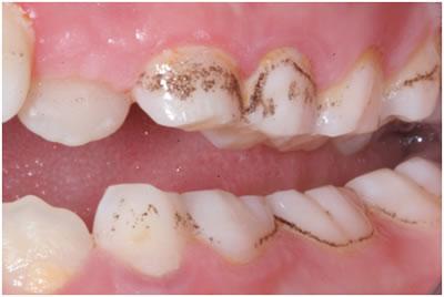 Bebeklerde Diş Kararması